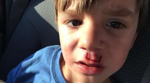 Fidget spinner zranił chłopca