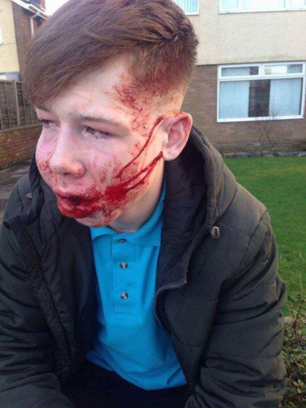 adolescente-golpeado-asaltado-3