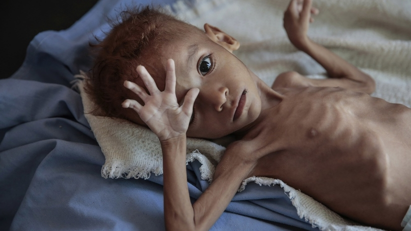 Kryzys humanitarny w Jemenie. PAH startuje ze zbiórką pieniędzy