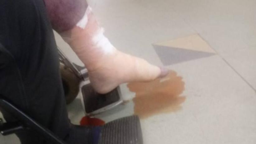 """Pacjent konał przez 9 godzin w szpitalnej poczekalni. """"Z nogi sączył się płyn z krwią"""""""