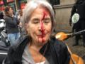 Krew i gniew na ulicach Katalonii. Policja brutalnie pacyfikuje referendum [FOTO]