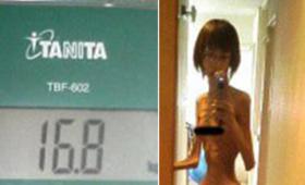 Nastolatka głodzona przez dziadka. Ważyła prawie 17 kilo [ZDJĘCIA]