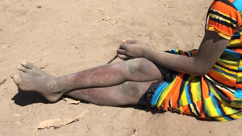 6-latka torturowana gorącymi nożami. Jej matkę spalono żywcem