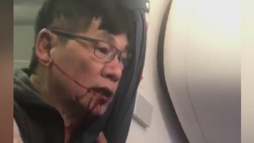 Lekarz siłą usunięty z samolotu United Airlines. Stracił zęby i złamał nos. Uzyska odszkodowanie [WIDEO]