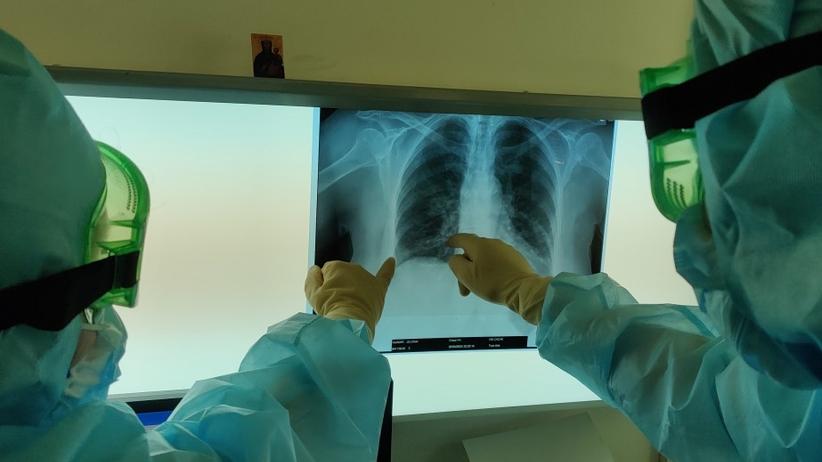 Płuca chorego na Covid-19, lekarz