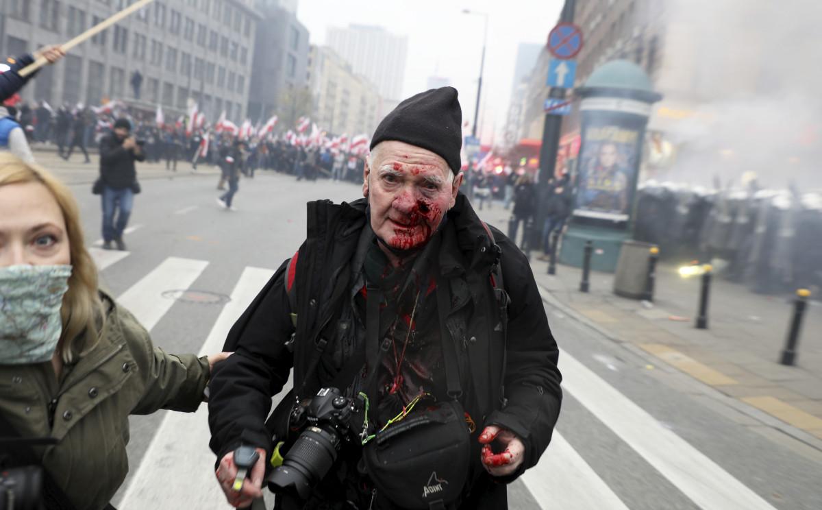 Fotoreporter postrzelony podczas Marszu Niepodległości