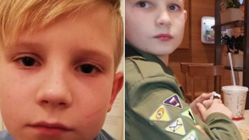 9-letni Jakub