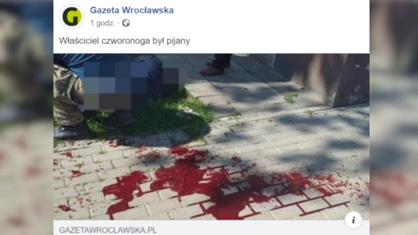 Dolnośląskie. Pies zaatakował kobietę w Miliczu