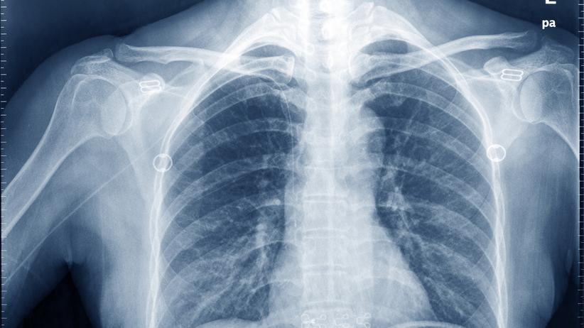 Wtargnął do urządzenia rentgenowskiego na granicy