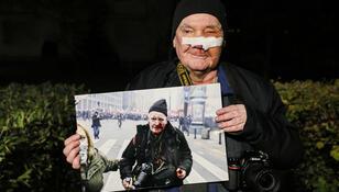 """Postrzelony przez policję fotoreporter żąda odszkodowania. """"Nawet sześć zer"""""""