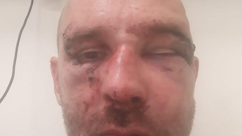 MSWiA o brutalnej napaści na dziennikarza. Policja zabezpiecza nagrania