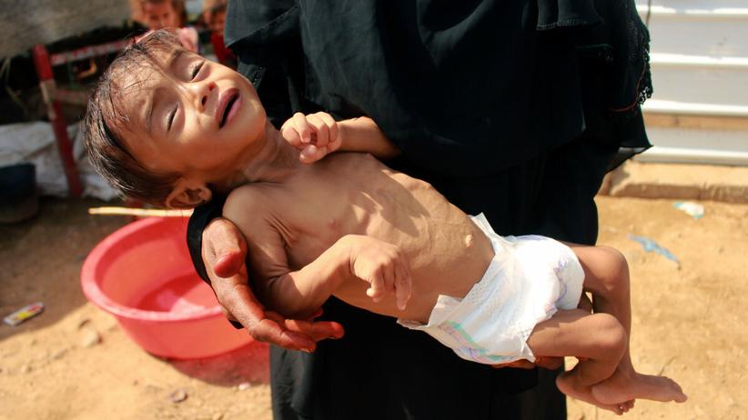 Głód w Jemenie, zagrożonych śmiercią będzie 16 mln ludzi