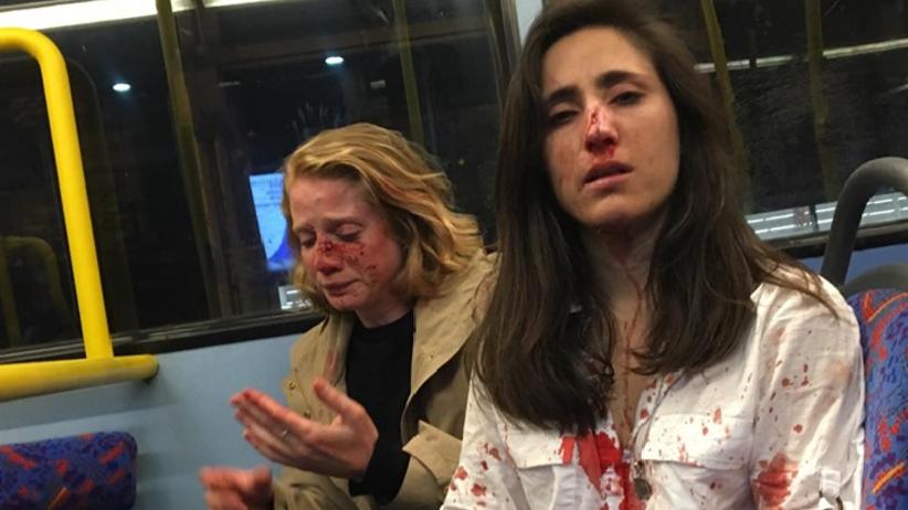 """Homoseksualna para dotkliwie pobita w autobusie. """"Obrzydliwy, mizoginiczny atak"""" [+18]"""