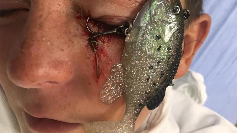 O krok od tragedii. Haczyk do łowienia ryb wbił się chłopcu w oko